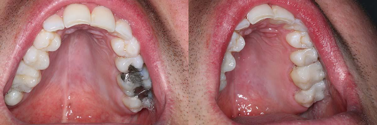 composite-white-fillings-before-after-2.jpg