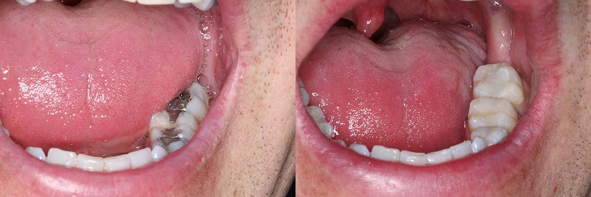composite-white-fillings-before-after.jpg