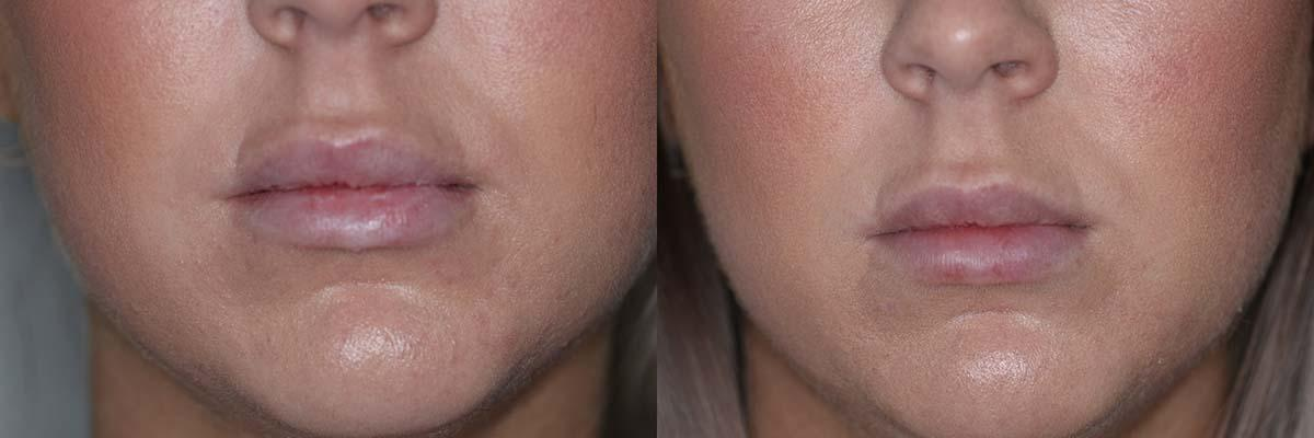 pre-and-post-lip-filler.jpg